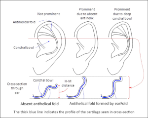 valutazione orecchio prominente